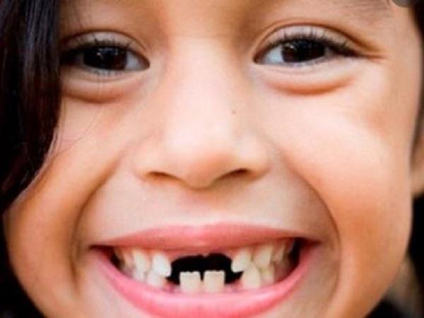 Nằm mơ thấy rụng nhiều răng điềm gì và đánh con gì?